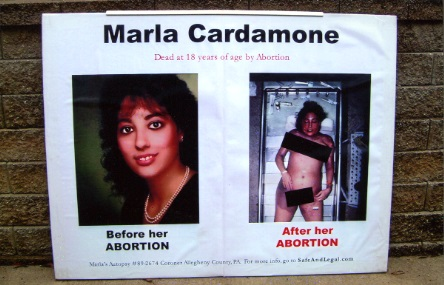 Autopsy image of woman killed from legal abortion placed on a poster outside abortion clinic