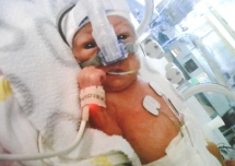 Baby born at 24 weeks after mother refuses abortion