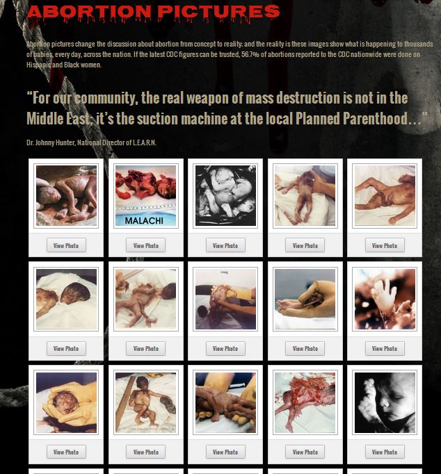 Abortion images Planned Parenthood pictures prolife