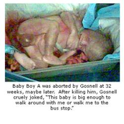 Gosnell baby-a
