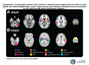 Pain brain activity active in adults and infants