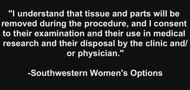 Boyd Southwestern abortion consent fetal tissue